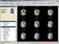 MRI review